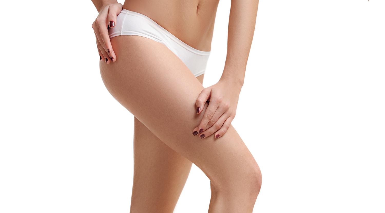 Lifting des membres - Chirurgie Esthétique - Nice - Docteur Buffet