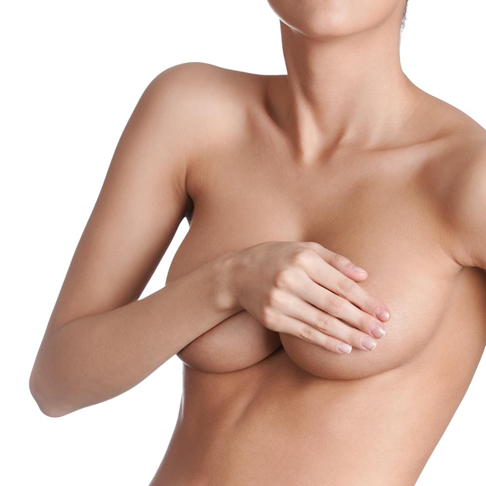 Ptose mammaire - Chirurgie Esthétique - Nice - Docteur Buffet